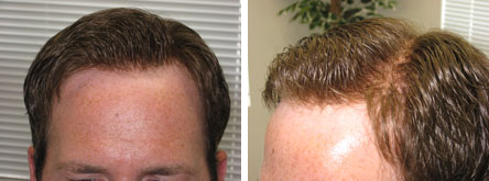 hair-by-dezign-before-and-after-1